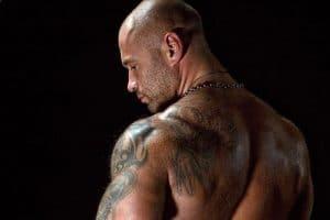 Testosteron a Trądzik