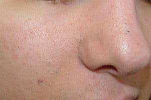 Wągry na twarzy i nosie